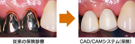 歯科用CAD/CAMシステムによる保険で白い自然な歯を提供